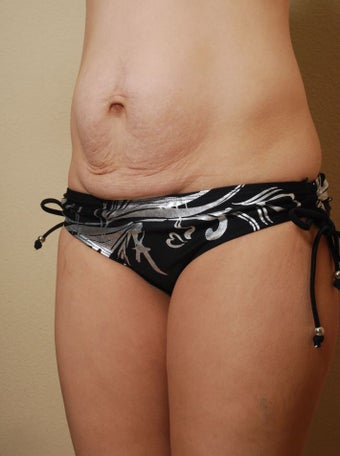 Tummy Tuck - 31 Year Old Female before 261537
