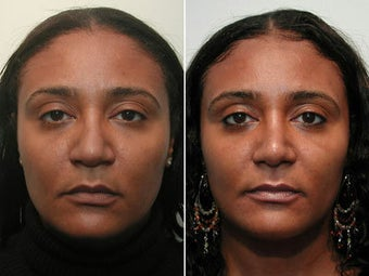 African American Rhinoplasty before 44101