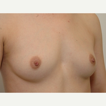 Breast Augmentation before 3108832