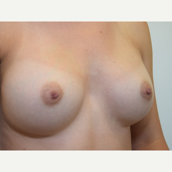 Breast Augmentation after 3108832