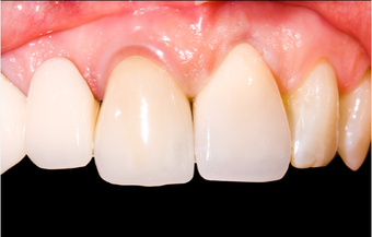 Dental Crown Procedure Before and After after 2860908