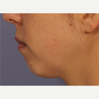 25-34 year old woman treated with Restylane before 3783455
