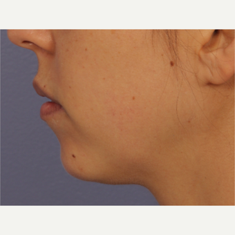 25-34 year old woman treated with Restylane after 3783455