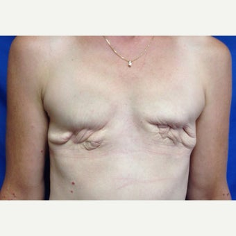 55-64 year old woman treated with Breast Reconstruction with Latissimus Flap before 2417623