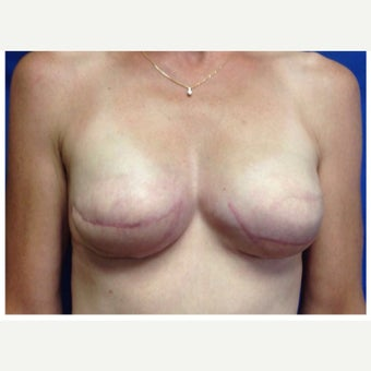55-64 year old woman treated with Breast Reconstruction with Latissimus Flap after 2417623