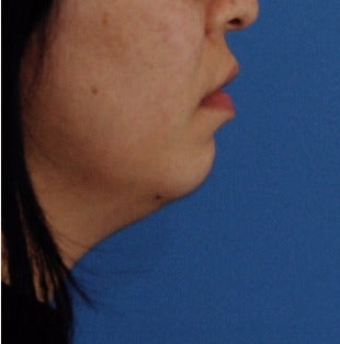 25-34 year old woman treated with one Kybella session before 3009634