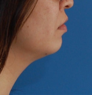 25-34 year old woman treated with one Kybella session after 3009634