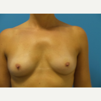 35-44 year old woman treated with Breast Augmentation before 3768573