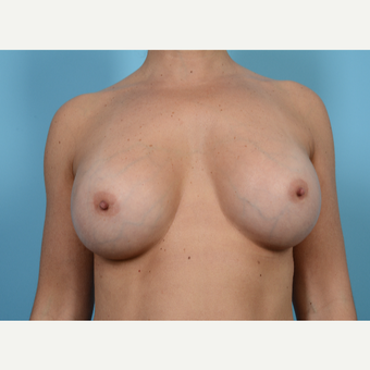 35-44 year old woman treated with Breast Augmentation after 3768573