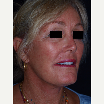 65-74 year old woman treated with Facelift after 3082360