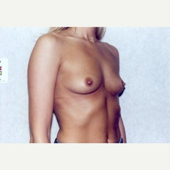 Breast Augmentation 1723091