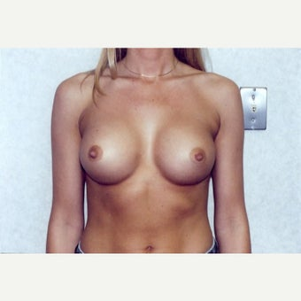Breast Augmentation after 1723091