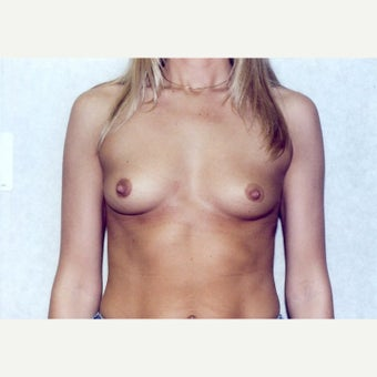 Breast Augmentation before 1723091
