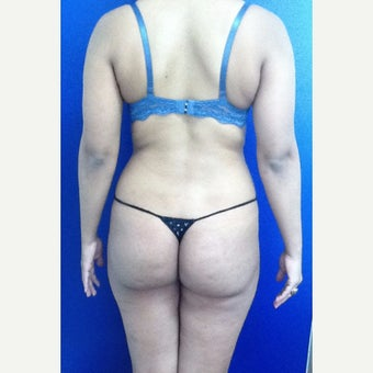 25-34 year old woman treated with Brazilian Butt Lift before 1986020