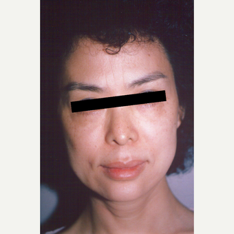 45-54 year old woman treated with Facelift before 3538802