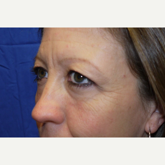 Eyelid Surgery before 3744054