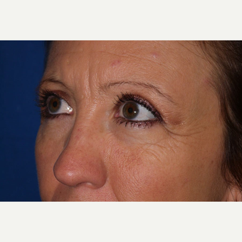 Eyelid Surgery after 3744054