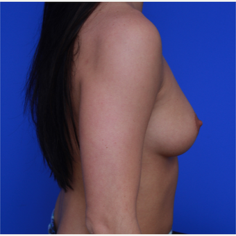 21-year old woman treated with Breast Augmentation before 3108937