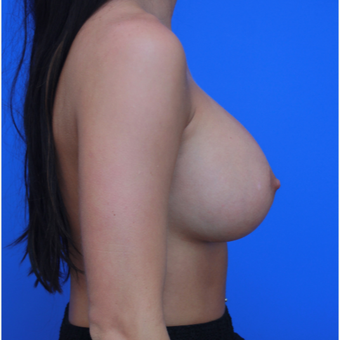 21-year old woman treated with Breast Augmentation after 3108937