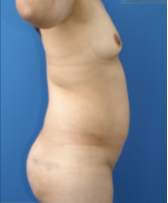 35-44 year old woman treated with Tummy Tuck 2740033