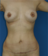 35-44 year old woman treated with Tummy Tuck after 2740033
