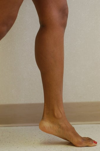 Calf Implants after 333755