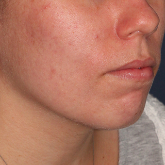 18-24 year old woman treated with Photodynamic Therapy after 3076882