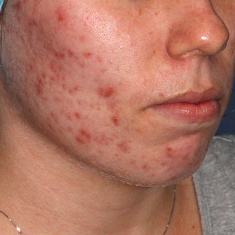 18-24 year old woman treated with Photodynamic Therapy before 3076882