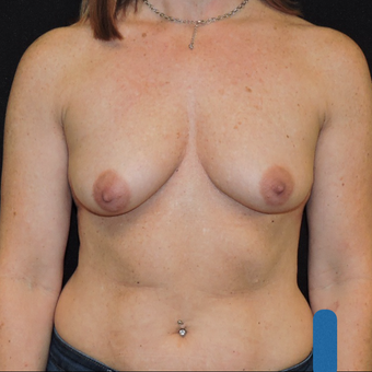 45-54 year old woman treated with Breast Augmentation before 3783325
