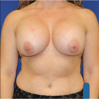 45-54 year old woman treated with Breast Augmentation after 3783325