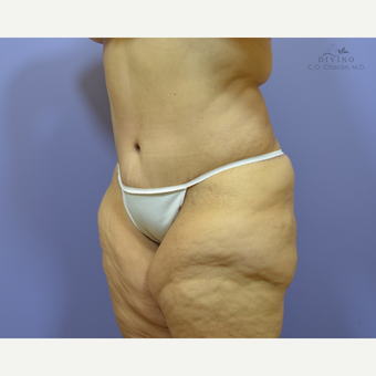 45-54 year old woman treated with Liposuction after 3421414