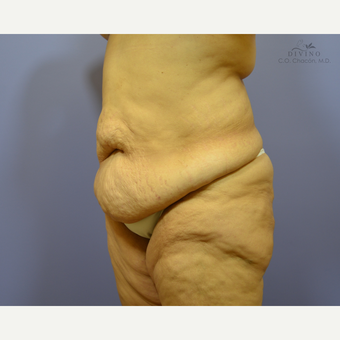 45-54 year old woman treated with Liposuction before 3421414