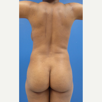 42 y/o F  BBL: lipo of Ab, flanks, back, upper arms, anterior axillas w/ fat transfer to butt.
