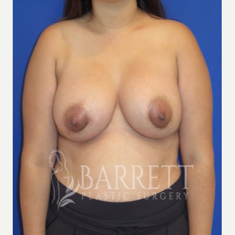 25-34 year old woman treated with Breast Augmentation after 2288992