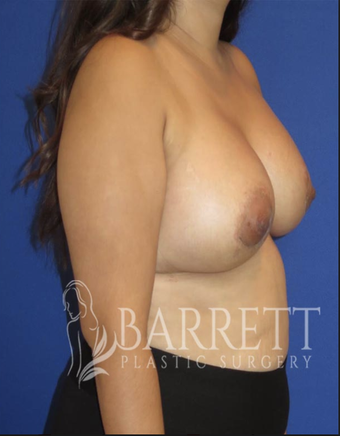25-34 year old woman treated with Breast Augmentation 2288992