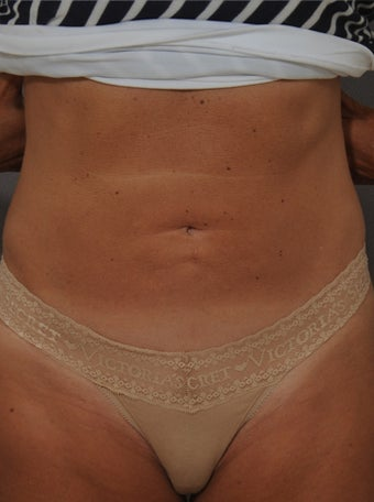 Smart Lipo after 1106673