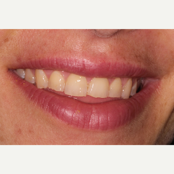 25-34 year old woman treated with Smile Makeover before 3213212