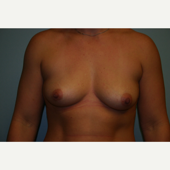 25-34 year old woman treated with Breast Augmentation before 3054241