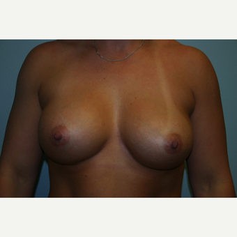 25-34 year old woman treated with Breast Augmentation after 3054241