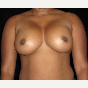 29 year old woman treated with Breast Implants after 3252468