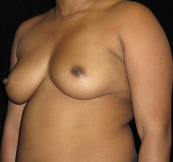 29 year old woman treated with Breast Implants 3252468
