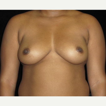 29 year old woman treated with Breast Implants before 3252468