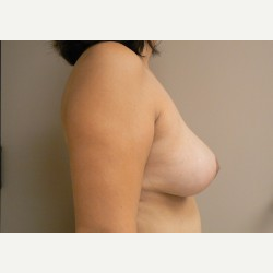 Breast Lift after 3373426