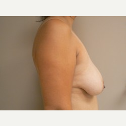 Breast Lift before 3373426