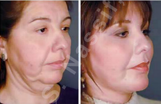 Complete Facial Rejuvenation after 138187