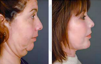 Complete Facial Rejuvenation 138187