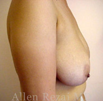 35-44 year old woman treated with Breast Reduction 2281252