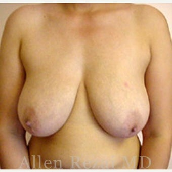 35-44 year old woman treated with Breast Reduction before 2281252