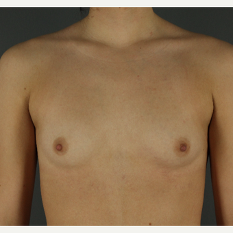 18-24 year old woman treated with Breast Implants before 3026352