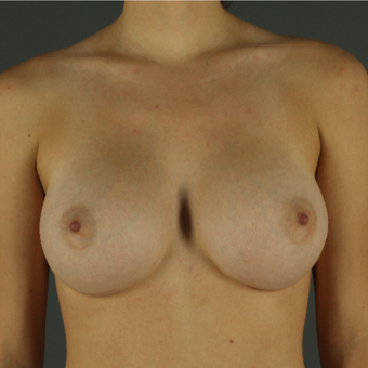18-24 year old woman treated with Breast Implants after 3026352